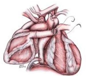 doua inimi cuplate impreuna