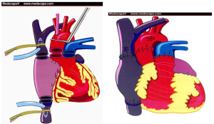 transplantul de inima